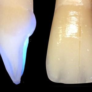 Couleur-dent-serfaty
